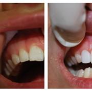 Художественной реставрацией зубов фото