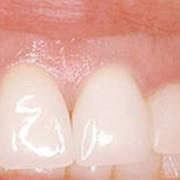 Лечение заболеваний десен фото