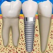 Несъемное протезирование зубов фото