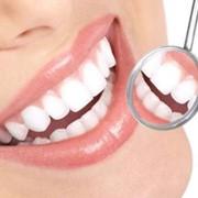 Удаление зубного камня в Киеве Клиника Ортолайф, профессиональная гигиена, чистка зубов фото