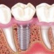 Лечение и реставрация зубов фото