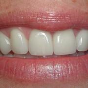 Терапевтическая стоматология, лечение кариеса, периодонтита, пульпита фото