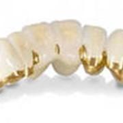 Изготовление зубных коронок в алматы фото