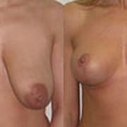 Эндопротезирование молочных желез фото