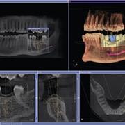 3D диагностика в стоматологии фото