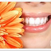 Лечение зубов: кариес, периодонтит, реставрация( восстановление) зубов, некариозные поражения зубов, пульпит фото