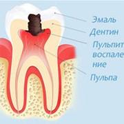 Лечение пульпита в Алматы фото
