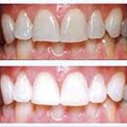 Лазерное отбеливание зубов, Стоматологические услуги фото