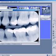 Компьютерная диагностика зубов фото