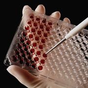 Биохимические исследования крови фото