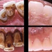 Удаление зубного камня ультразвуковым скалером в алматы фото