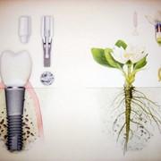 Имплантация и хирургия фото