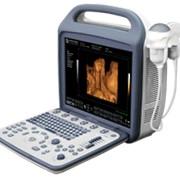 Портативный ультразвуковой аппарат фото