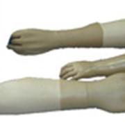 Изготовление протезов верхней конечности (предплечье) фото