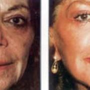 Косметологические услуги выполняемые врачом фото