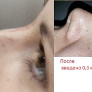 Коррекция спинки носа +увеличение губ фото