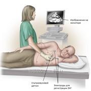Функциональная диагностика сердечно-сосудистой системы фото