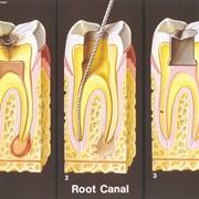 Лечение каналов зуба фото