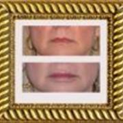 Увеличение губ фото