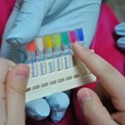 Пломбирование молочных зубов фото