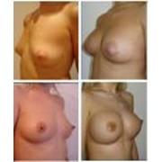 Уменьшение груди (редукция) фото