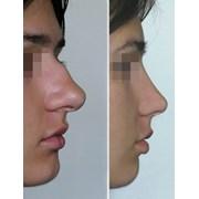 Ринопластика - изменение формы и размера носа фото
