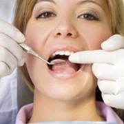 Пломбирование корневых каналов зубов в Киеве в клинике Ортолайф фото