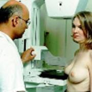 Прием врача-маммолога фото