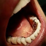 Бюгельные протезы. Коррекция формы и положения зубов фото