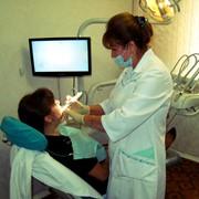Лечение кариеса, реставрация и восстановление зубов фото