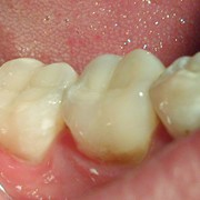 Лечение кариеса, некариозных поражений зубов фотография