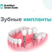 Акция на зубные импланты в BrainMark Dental Studio фотография