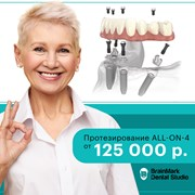 Акция на протезирование в BrainMark Dental Studio фотография