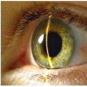 Лечение глаукомы в Кишиневе фото