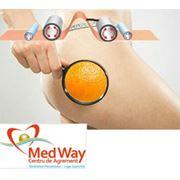ВАКУУМНО-РОЛИКОВЫЙ МАССАЖ. Глубокий массаж тканей.Улучшает и стимулирует лимфообращение и кровообращение; улучшает и укрепляет контуры тела. фото