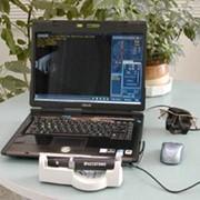 Б-скан ультразвуковой фото