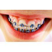 Лазерная стоматология в Молдове фото