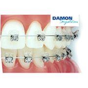Брекеты Damon System Выравнивание зубного ряда фото