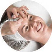 Аппаратная косметология. Алмазный пилинг
