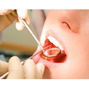 Лазерная стоматология фото