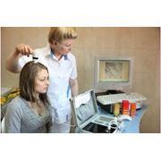 Лечение волос в Молдове фото