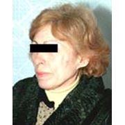 Подтяжка кожи лица (лифтинг) фото