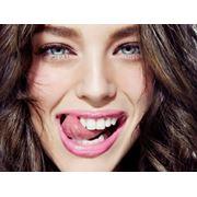 Curatare dentara фото