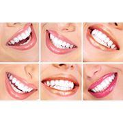 Отбеливание зубов в Кишиневе фото