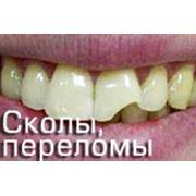 Пигментация абфракция эндодонтия сколы и переломы плохие привички фото