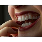 Фотоотбеливание зубов в Кишиневе фото