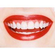 Отбеливание зубов в Молдове \ Inalbirea dintilor in Moldova фото