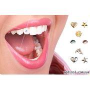 Установка бриллианта на зубы фото