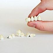 Безметалловая керамика. Зубные коронки. фото