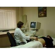 Ультразвуковая диагностика с функцией 4Д фото
